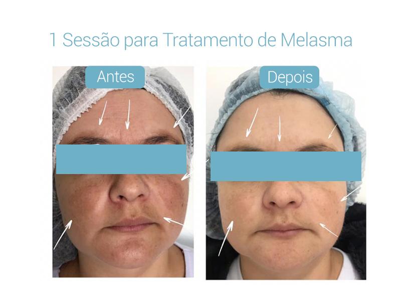 resultados-derma-belcolsorocaba-03b