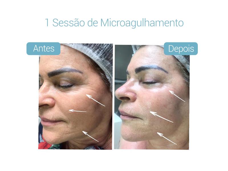 resultados-derma-belcolsorocaba-05