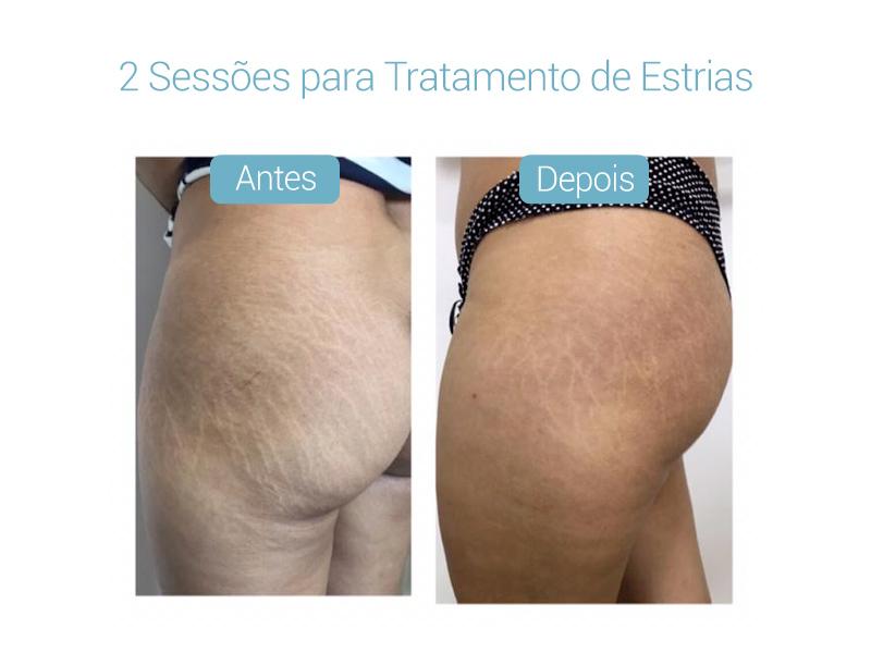 resultados-derma-belcolsorocaba-08